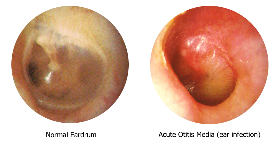 Middle ear fluid adult